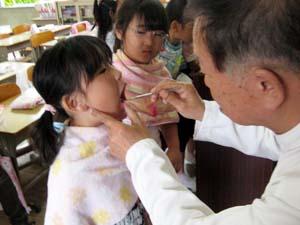 歯科医師のチェックを受ける児童 - 歯の衛生週間、小学校で歯磨き指導